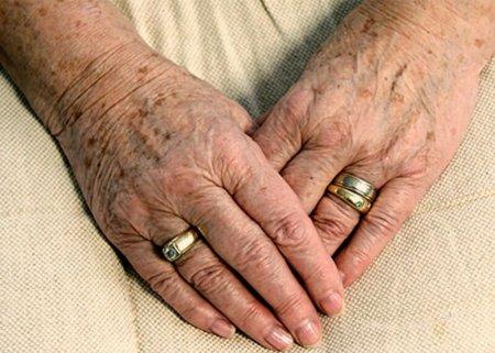Пигментные пятна у пожилых людей